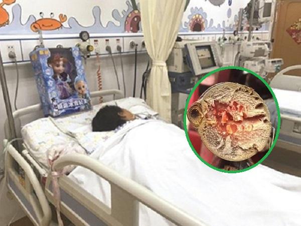 Bé gái bị suy đa tạng nặng vì món ăn dùng để… 'GIẢI KHÁT MÙA HÈ, hãy cự tuyệt với món 'chết người' này
