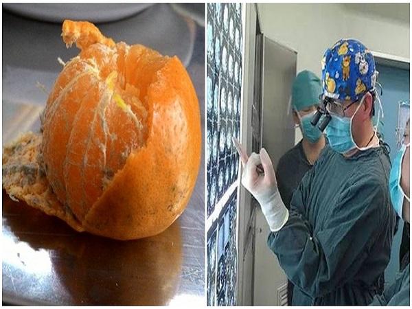 Những loại quả 'siêu ngon' người Việt 'siêu thích' lại là khắc tinh của căn bệnh ung thư gan nguy hiểm