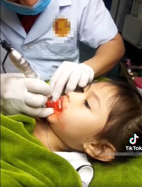 Mới 5 tuổi đã dẫn con gái đi phun môi, cộng đồng mạng bức xúc lên án người mẹ - Ảnh 1