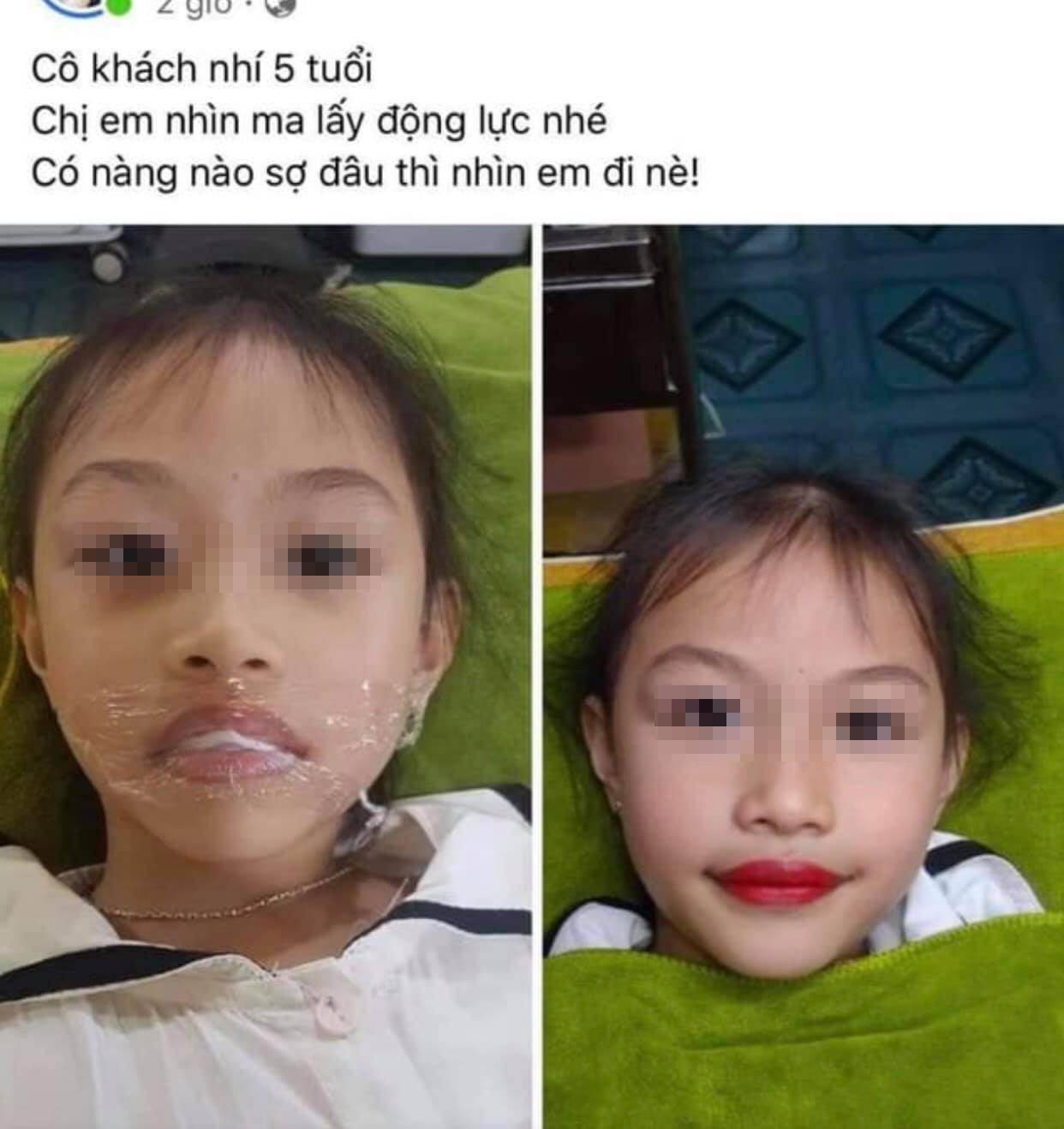 Mới 5 tuổi đã dẫn con gái đi phun môi, cộng đồng mạng bức xúc lên án người mẹ - Ảnh 3