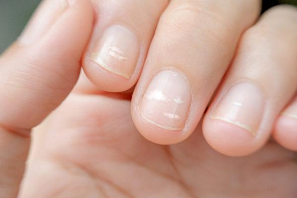 Không phải xem chỉ tay, nhìn móng tay của mình thuộc loại nào trong 7 kiểu dưới đây sẽ giúp bạn đoán được sức khỏe của bản thân - Ảnh 3