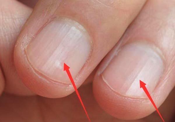 Không phải xem chỉ tay, nhìn móng tay của mình thuộc loại nào trong 7 kiểu dưới đây sẽ giúp bạn đoán được sức khỏe của bản thân - Ảnh 4