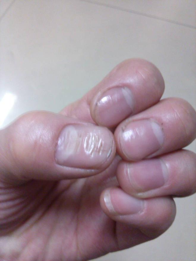 Không phải xem chỉ tay, nhìn móng tay của mình thuộc loại nào trong 7 kiểu dưới đây sẽ giúp bạn đoán được sức khỏe của bản thân - Ảnh 5