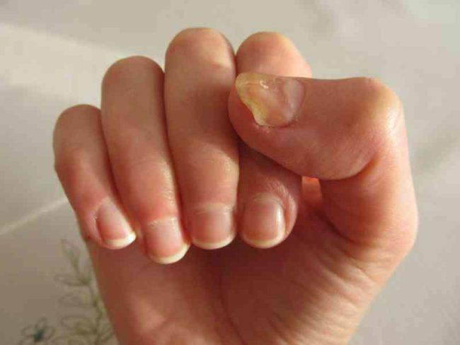 Không phải xem chỉ tay, nhìn móng tay của mình thuộc loại nào trong 7 kiểu dưới đây sẽ giúp bạn đoán được sức khỏe của bản thân - Ảnh 6