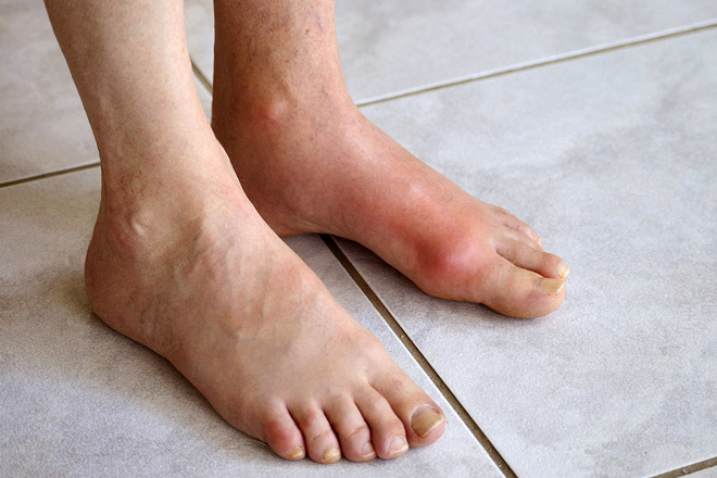 Không muốn bị bệnh gút đau như bị 'chuột gặm chân': Hãy bớt ăn 4 loại thực phẩm làm tăng axit uric - Ảnh 1