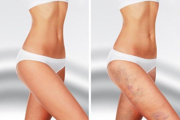 Da xuất hiện vết bầm tím, đừng chủ quan hãy xem lại 7 nguyên nhân này