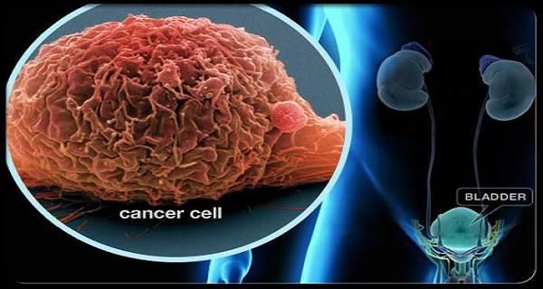 Người bị ung thư nên ăn gì để chống lại bệnh? - Ảnh 1