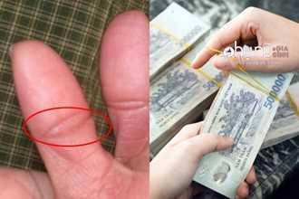 Ngón tay cái mà có nét đặc biệt này thì xin chúc mừng bạn...