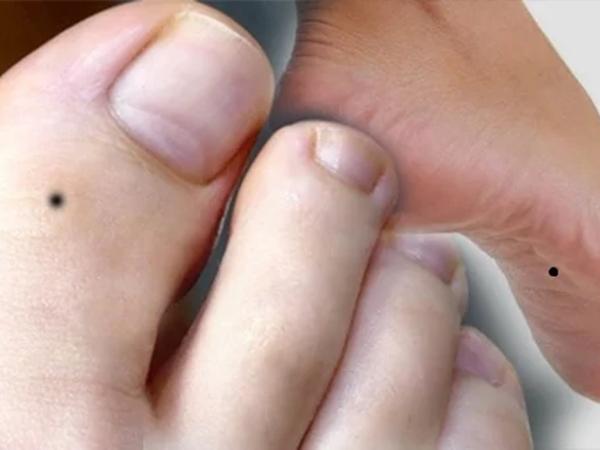 3 vị trí nốt ruồi mọc ở chân mang lại may mắn, phát lộc phát tài sau tuổi 30