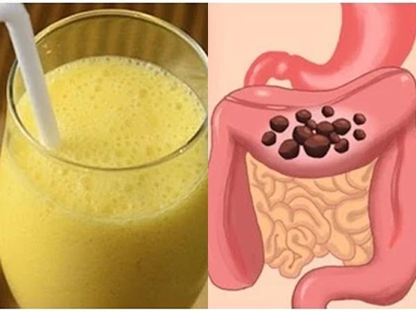 7 đồ uống tự nhiên thải độc đại tràng rất tốt, làm sạch cặn bã, tiêu hóa trơn tru