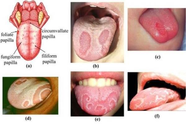 Giúp mẹ nhận biết bệnh viêm lưỡi bản đồ ở trẻ và cách điều trị - Ảnh 1