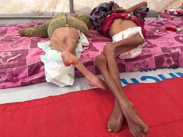 Những bộ xương sống di động: Hình ảnh gây sốc về những đứa trẻ khốn khổ mắc kẹt trong chiến tranh - Ảnh 2