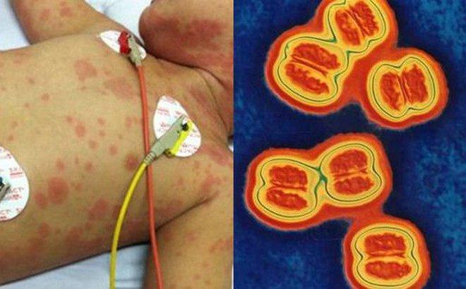 Viêm não mô cầu: Căn bệnh cực kỳ nguy hiểm, có thể gây tử vong trong vòng 24 giờ