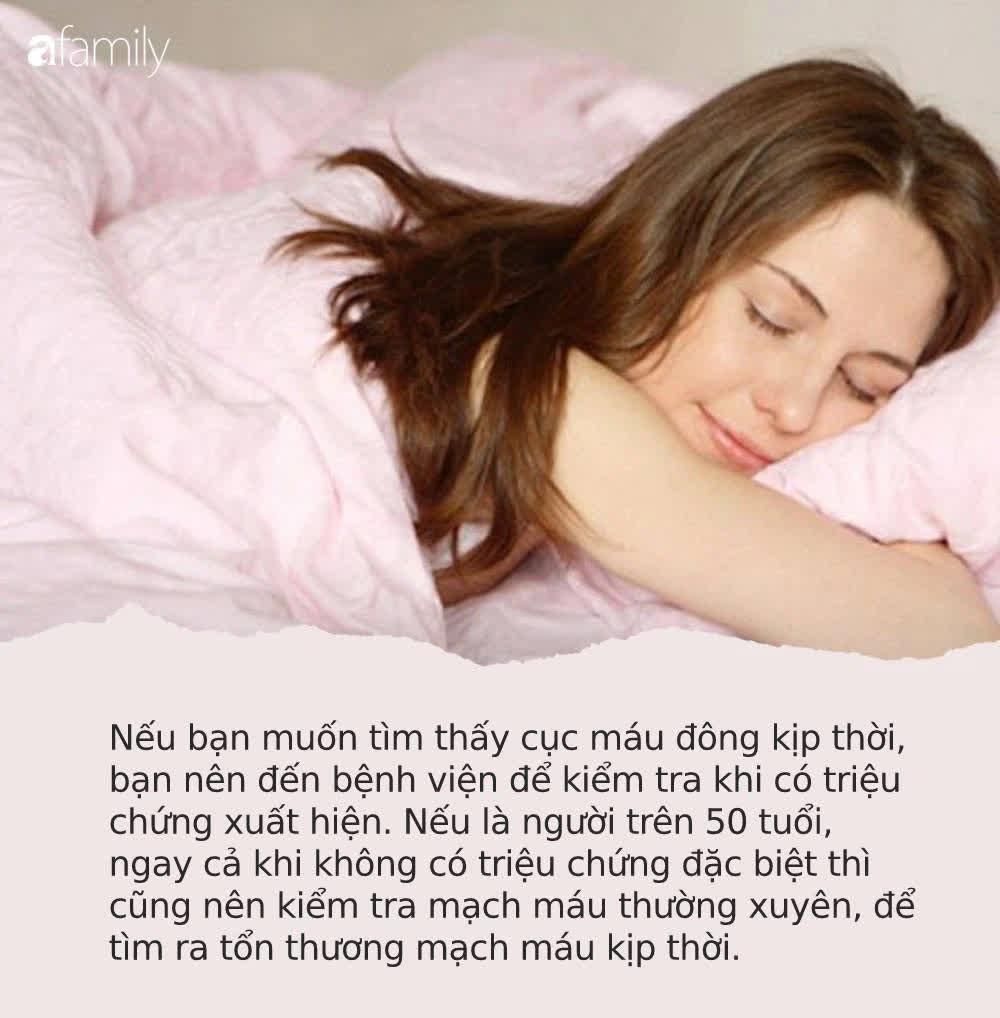 Trước khi ngủ hãy cẩn thận kiểm tra 4 dấu hiệu này, tốn vài giây nhưng giúp bạn phòng tránh đột quỵ xảy ra trong khi ngủ - Ảnh 3