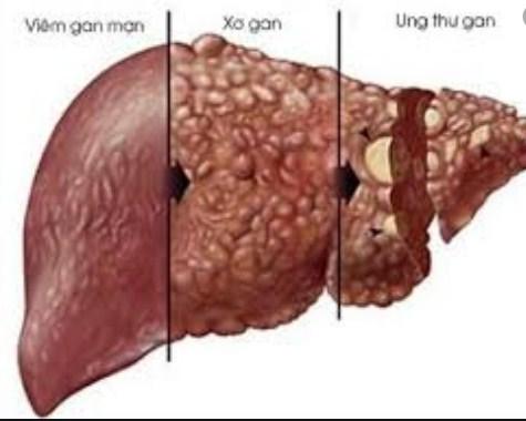 Gan yết ớt, mắc bệnh vì nạp chất độc hàng ngày: Nhớ 3 không ăn, 2 không ngủ để gan khỏe - Ảnh 1